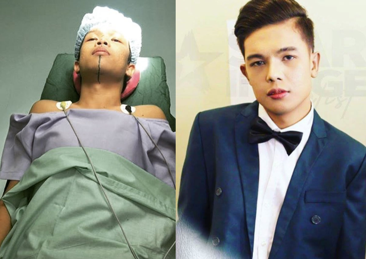 Marlou Arizala is dead, and Xander Ford's new face is ...