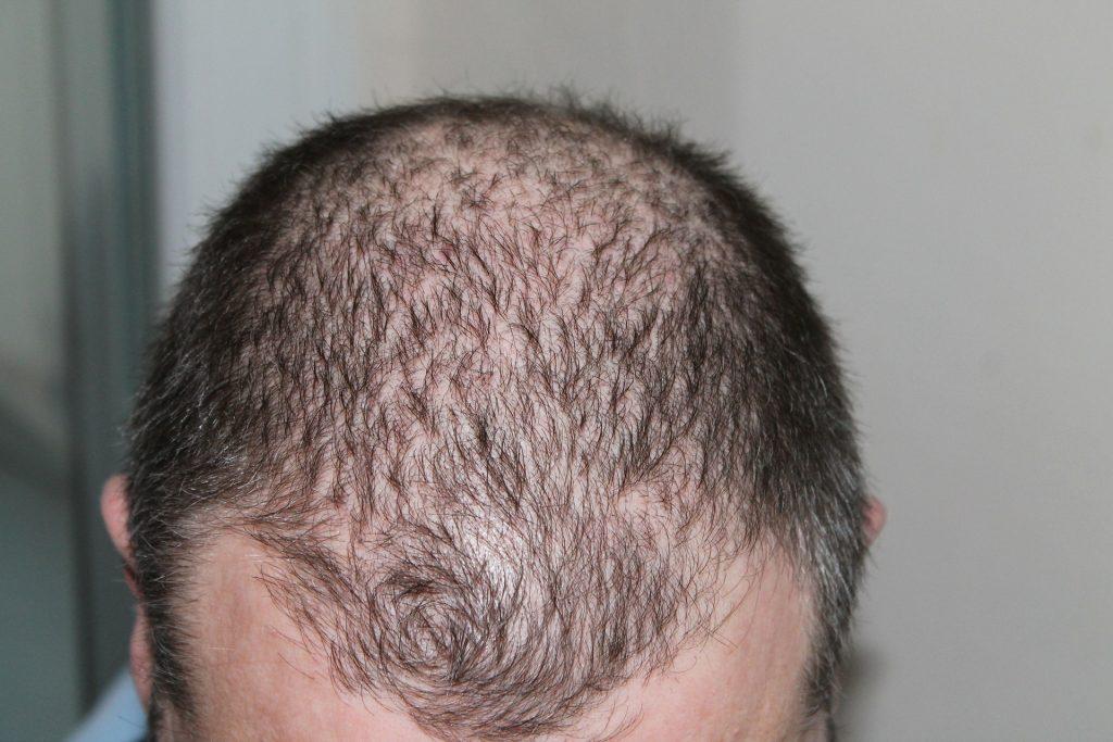 hair loss hair fall dove